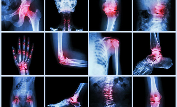 Joint Effort: Low T Linked To Joint & Back Pain